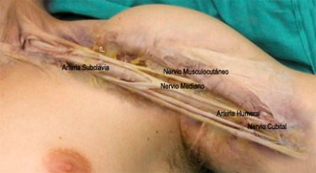 http://www.fullblog.com.ar/blogs/anestesiologia/1245030819504940.jpg